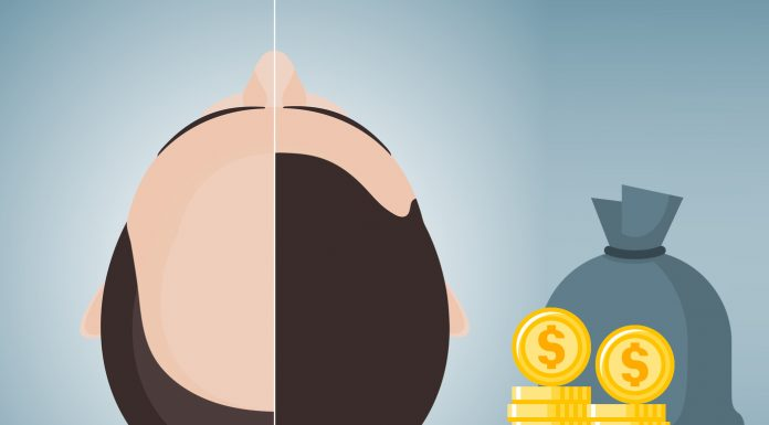 What Is Average Cost of Hair Transplant