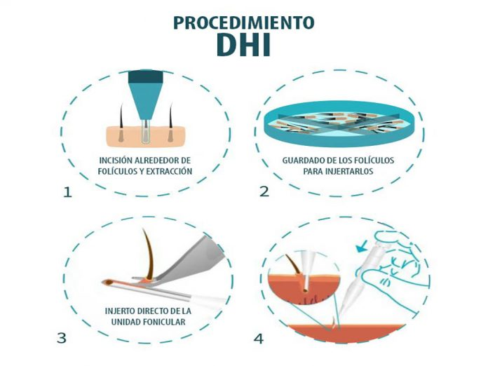 What Is DHI Hair?