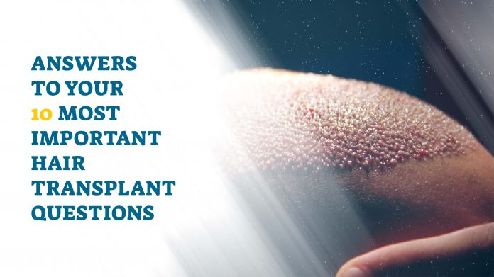 answers to your 10 most important hair transplant questions